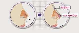 การเสริมจมูกแบบโอเพ่น (Open Rhinoplasty) และแบบปิด (Close Rhinoplasty) ธีระธรฌ์คลินิก หมอกัน