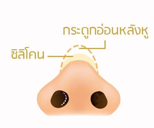 เสริมจมูก กระดูกอ่อนหลังหู ธีระธรณ์คลีนิค by หมอกัน