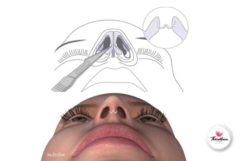 เสริมจมูกระดูกอ่อนหลังหู ธีระธรฌ์คลินิก หมอกัน