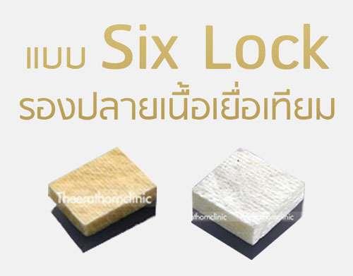 เสริมจมูกแบบ six lock รองปลายเนื้อเยื้อเทียม ธีระธรณ์คลีนิค by หมอกัน