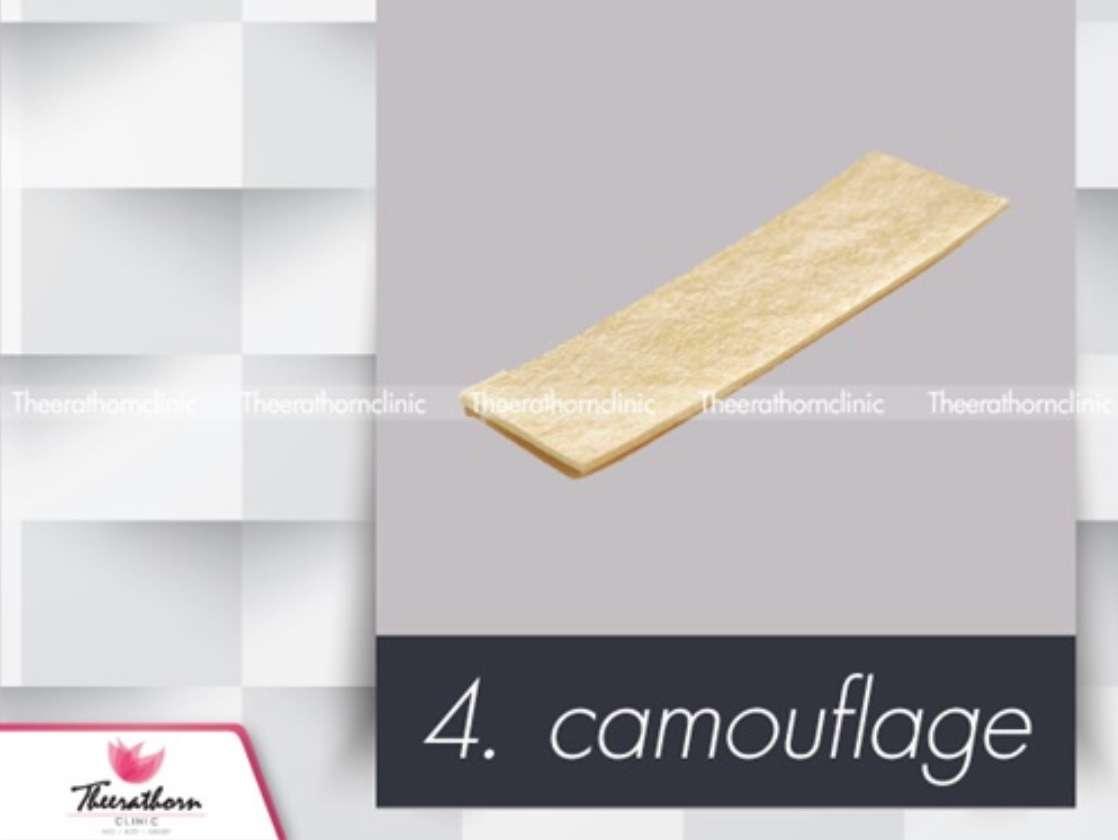 camouflage เสริมจมูก ธีระธรฌ์คลินิก หมอกัน