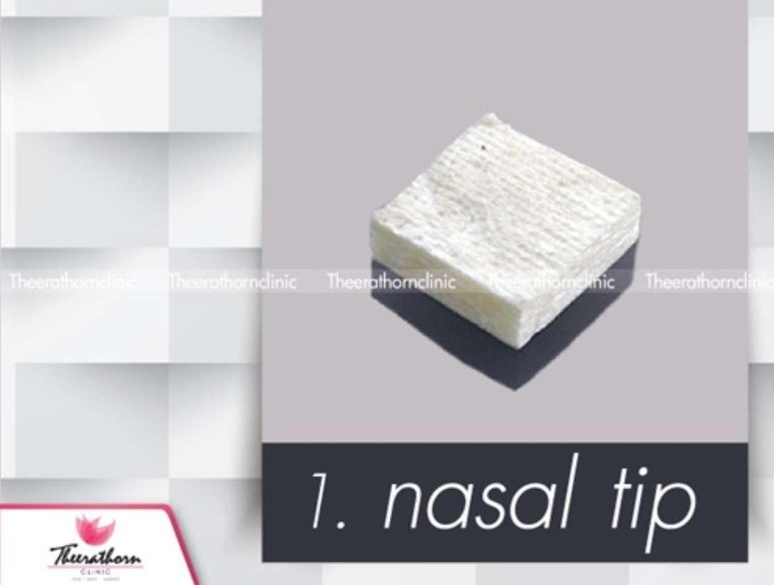 nasal tip เสริมจมูก ธีระธรฌ์คลินิก หมอกัน
