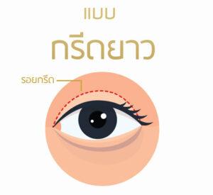 กรีดยาว ตาสองชั้น เทคนิคทำตาสองชั้น ธีระธรฌ์คลินิก หมอกัน