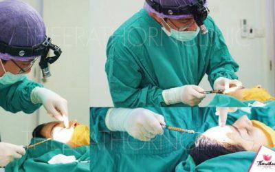 ขั้นตอนฉีดไขมันหน้าเด็ก หมอกัน ที่ธีระธรฌ์คลินิก