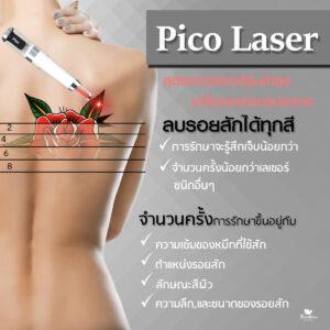 เลเซอร์ ธีระธรฌ์ หมอกัน Picolaser ลบรอยสัก