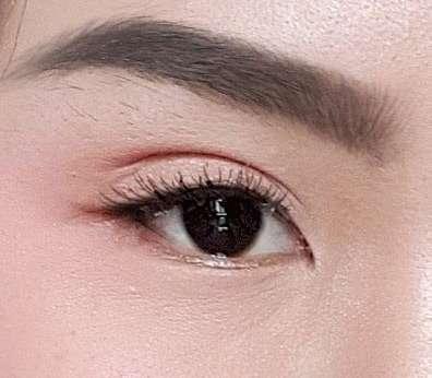 ปัญหาเรื่องตา-ทำตาสองชั้น-เปิดตาดำ-ธีระธรฌ์คลินิก-หมอกัน