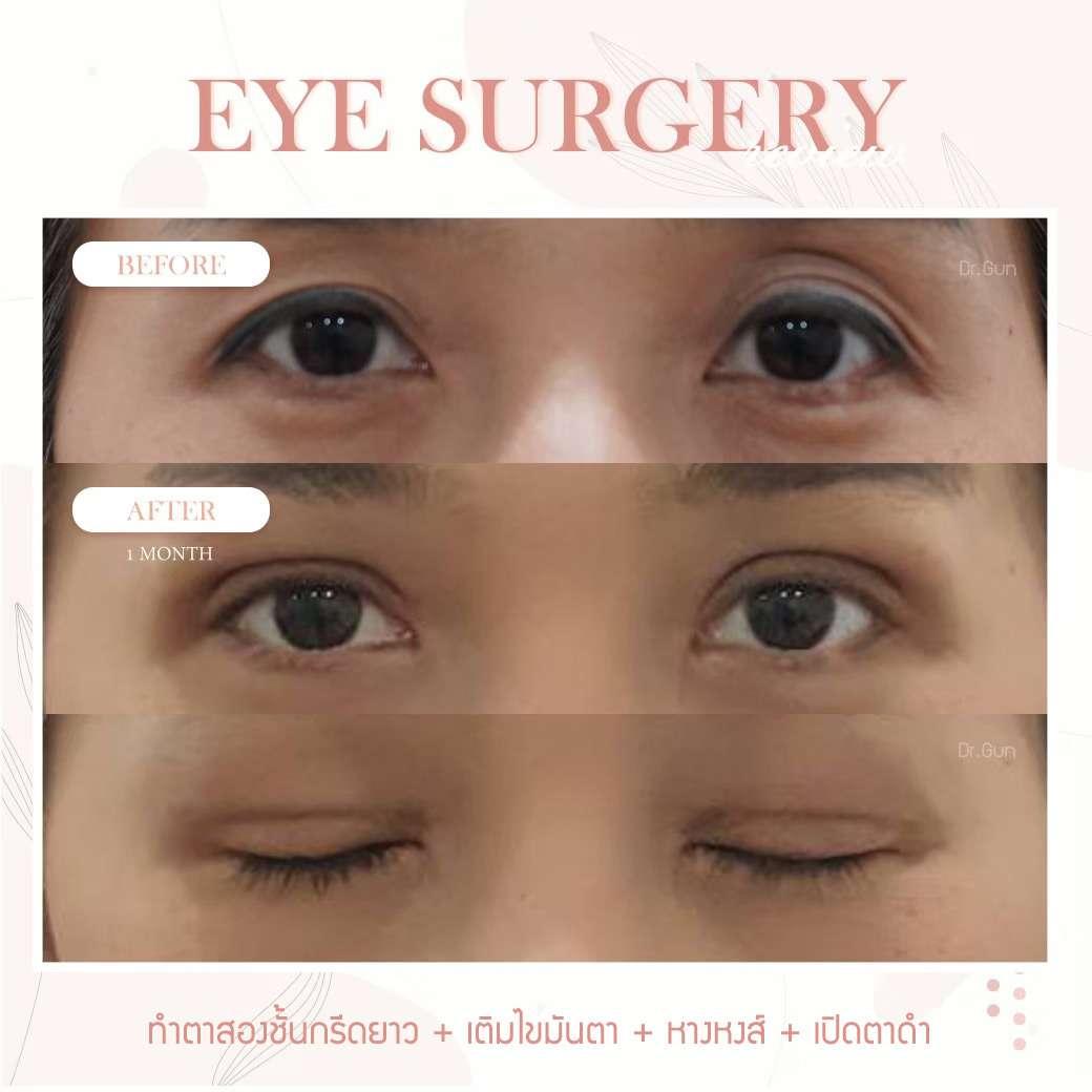 รีวิว-ทำตาสองชั้น-แก้ตาสองชั้น-เปิดตาดำ-ธีระธรฌ์คลินิก-หมอกัน