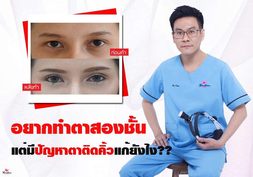 ปัญหาเรื่องตา-ทำตาสองชั้น-ตาติดคิ้ว-ธีระธรฌ์คลินิก-หมอกัน