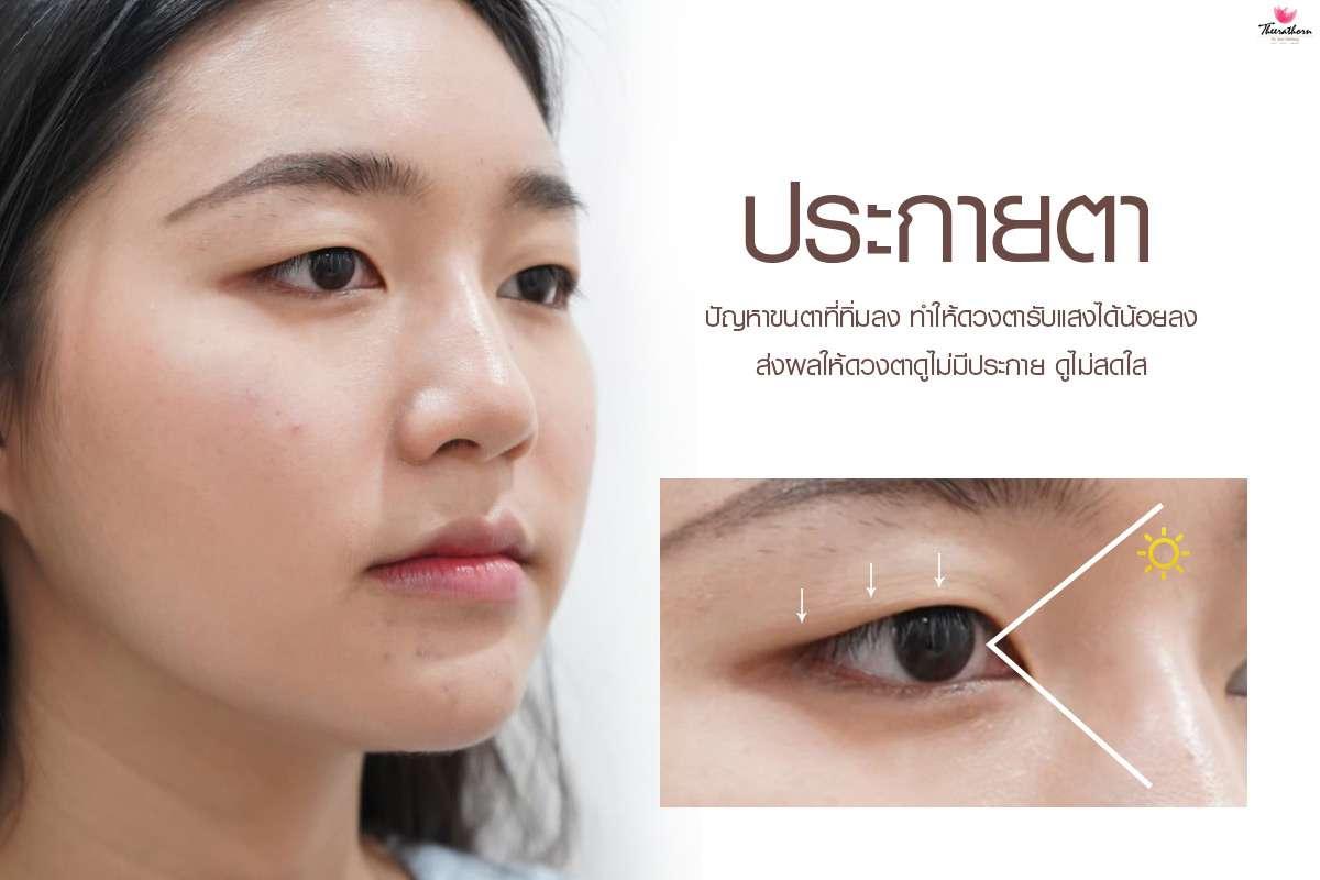ปัญหาเรื่องตา-ทำตาสองชั้น-ตาสวย มีเสน่ห์-ธีระธรฌ์คลินิก-หมอกัน