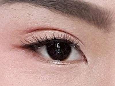 ปัญหาเรื่องตา-ทำตาสองชั้น-ตาสวย มีเสน่ห์-ธีระธรฌ์คลินิก-หมอกัน-เปิดตาดำ