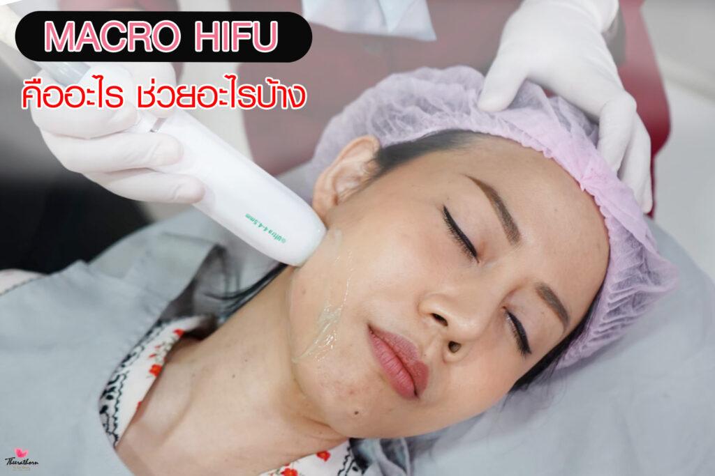 Hifu-ไฮฟู่-ธีระธรฌ์-หมอกัน-Hifuที่ไหนดี-Hifuช่วยอะไรบ้าง-รีวิวไฮฟู่