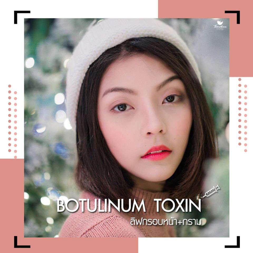 หมอกัน-ธีระธรฌ์คลินิก-ฉีดโบท็อกซ์ที่ไหนดี-โบท็อกซ์-Botox-โบท็อกซ์ช่วยแก้อะไรได้บ้าง-โบท็อกซ์เหมาะกับใครบ้าง-โบท็อกซ์ลิฟต์หน้า
