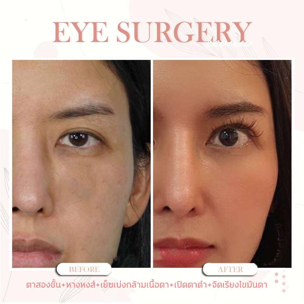 ปัญหาเรื่องตา-ทำตาสองชั้น-ข้อควรรู้ก่อนทำตา-ธีระธรฌ์คลินิก-หมอกัน-รีวิวตาหมอกัน-เปิดตาดำ-รีวิวเปิดตาดำ
