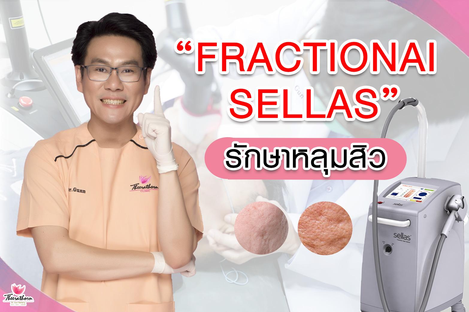 รักษาหลุมสิว-หลุมสิว-จุดด่างดำ-รอยแผลเป็น-ธีระธรฌ์คลินิก-หมอกัน-รักษาหลุมสิวที่ไหนดี-Fractional Sellas รักษาหลุมสิว