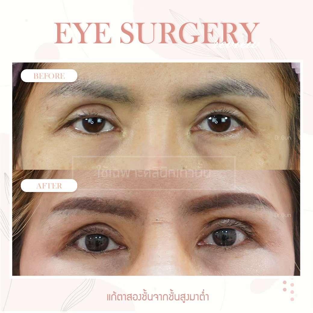 ปัญหาเรื่องตา-ทำตาสองชั้น-ข้อควรรู้ก่อนทำตา-ธีระธรฌ์คลินิก-หมอกัน-รีวิวตาหมอกัน