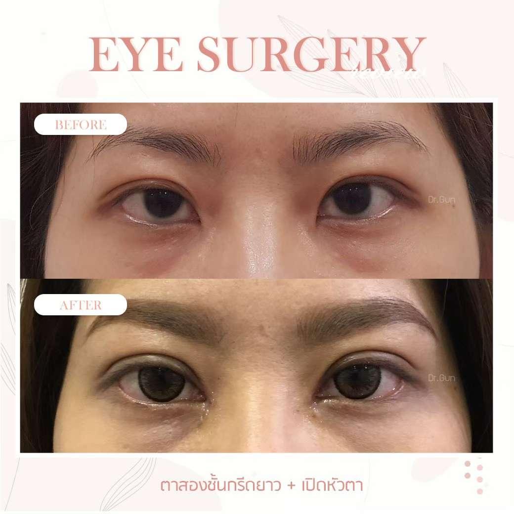 ปัญหาเรื่องตา-ทำตาสองชั้น-ข้อควรรู้ก่อนทำตา-ธีระธรฌ์คลินิก-หมอกัน-รีวิวตาหมอกัน-เปิดตาดำ