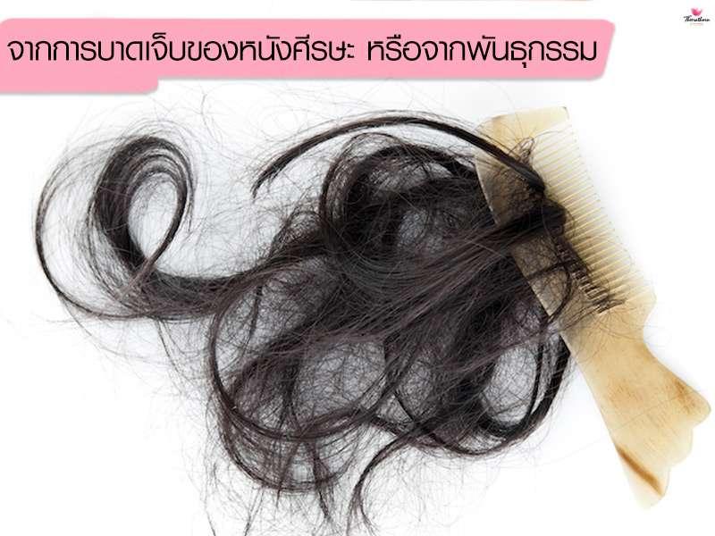 ปลูกผมถาวร-Hair Transplantation-ธีระธรฌ์คลินิก-หมอกัน-ปลูกผมที่ไหนดี-การปลูกผม คืออะไร-ใครควรปลูกผม