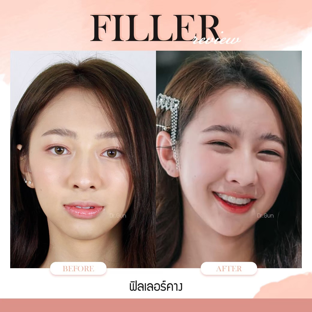 ฟิลเลอร์-ฉีดฟิลเลอร์แบบไหนสวย-ฉีดฟิลเลอร์ที่ไหนดี-หมอกัน-ธีระธรฌ์คลินิก-ฟิลเลอร์คืออะไร-ฉีดฟิลเลอร์คาง