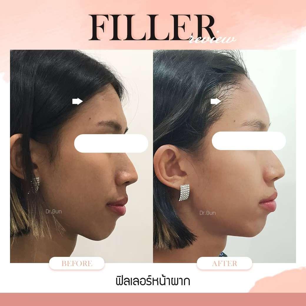 ฟิลเลอร์-ฉีดฟิลเลอร์แบบไหนสวย-ฉีดฟิลเลอร์ที่ไหนดี-หมอกัน-ธีระธรฌ์คลินิก-ฟิลเลอร์คืออะไร-ฉีดฟิลเลอรหน้าผาก