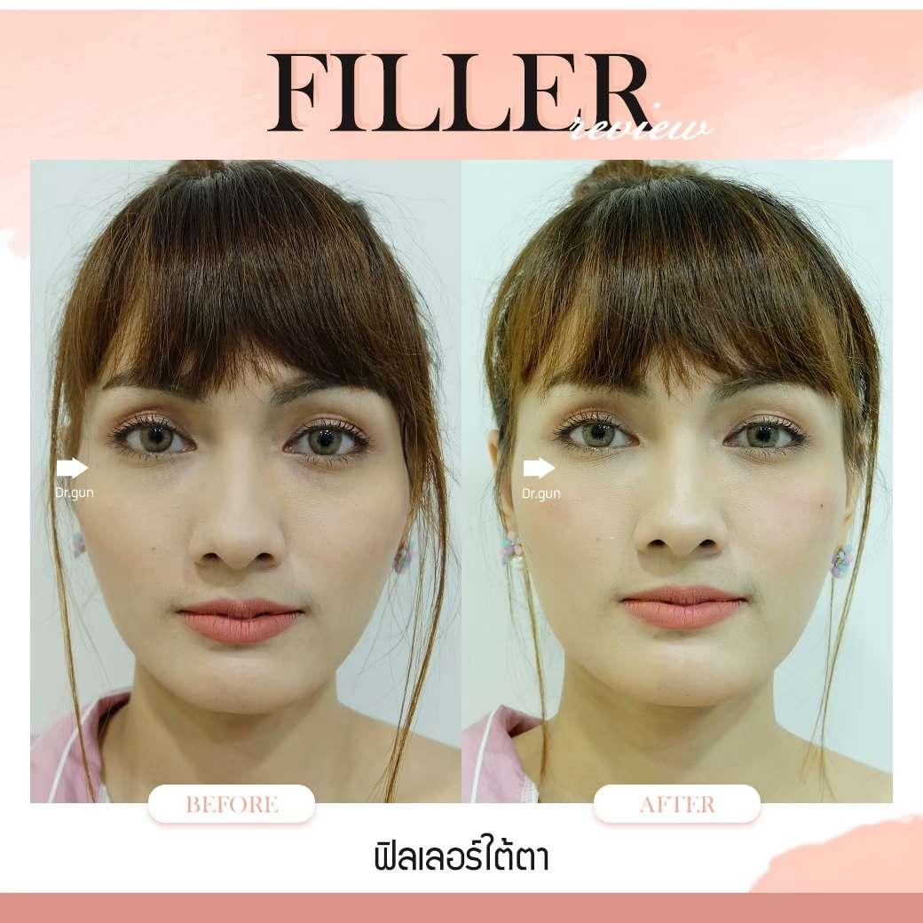 ฟิลเลอร์-ฉีดฟิลเลอร์แบบไหนสวย-ฉีดฟิลเลอร์ที่ไหนดี-หมอกัน-ธีระธรฌ์คลินิก-ฟิลเลอร์คืออะไร-ฉีดฟิลเลอร์ใต้ตา