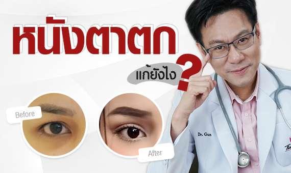 ทำตา-แก้ตา-ทำตาที่ไหนดี-ทำตาสองชั้น-แก้หนังตาตก-หมอกัน-ธีระธรฌ์คลินิก-ตา2ชั้น
