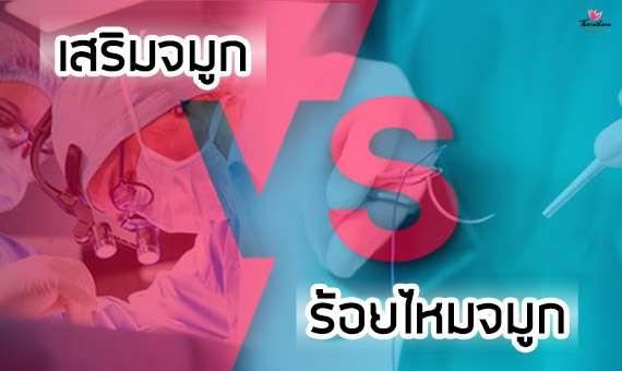 การเสริมจมูก VS ร้อยไหมจมูก แบบไหนดีกว่ากัน? - ธีระธรฌ์คลินิ - หมอกัน - หมอกัน นพ.รัฐรุจน์ บารมีไชยภัสร์