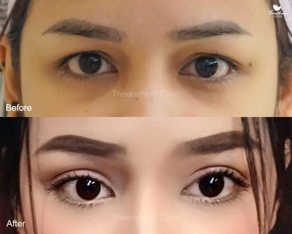 แก้ตา-ทำตา-ตาสองชั้น-ทำตาที่ไหนดี-ทำตาสองชั้น-แก้หนังตาตก-หมอกัน-ธีระธรฌ์คลินิก