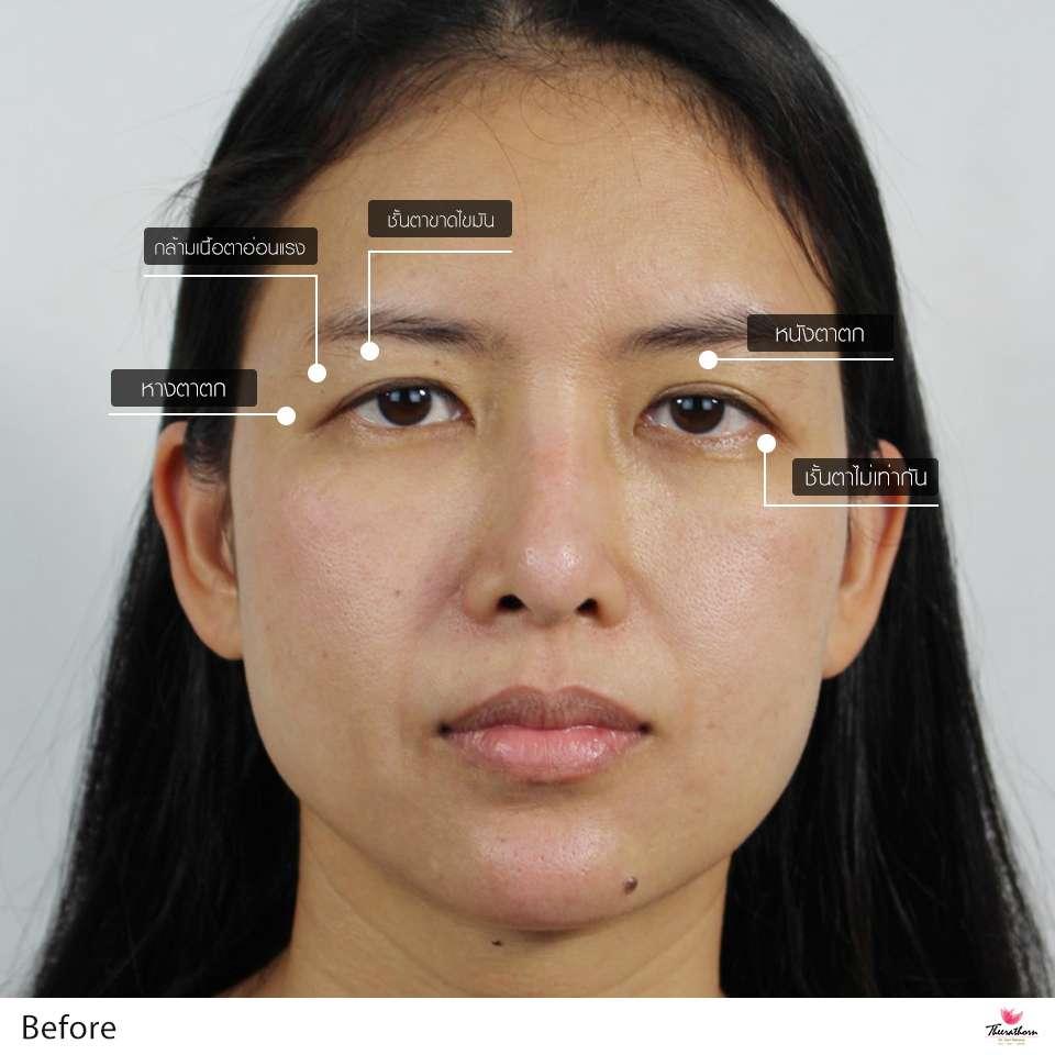 ทำตา-แก้ตา-ทำตาที่ไหนดี-หมอกัน-ธีระธรฌ์คลินิก-เปิดตาดำ-เปิดหัวตา (1)