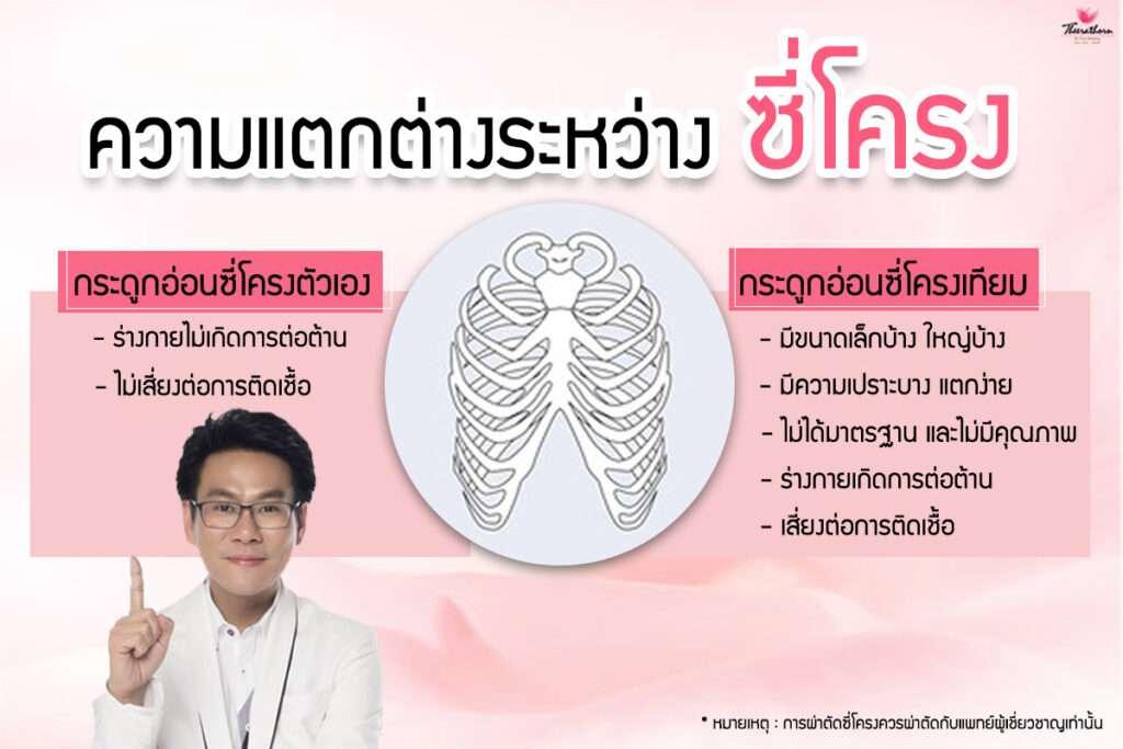 จมูกโอเพ่นซี่โครง-จมูกโอเพ่นซี่โครงเทียม-เสริมจมูก-จมูกโอเพ่น-ข้อดีกระดูกอ่อนหลังหู-ข้อเสียกระดูกอ่อนหลังหู-ข้อดีกระดูกอ่อนซี่โครง-ข้อเสียกระดูกอ่อนซี่โครง-ธีระธรฌ์คลินิก-หมอกัน