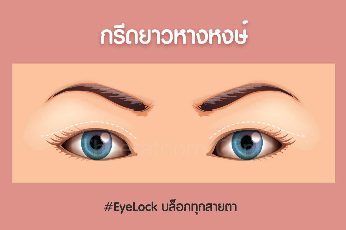 กรีดยาวหางหงษ์-กรีดยาว-กรีดสั้น-ทำตา-แก้ตา-ทำตาที่ไหนดี-หมอกัน-ธีระธรฌ์คลินิก