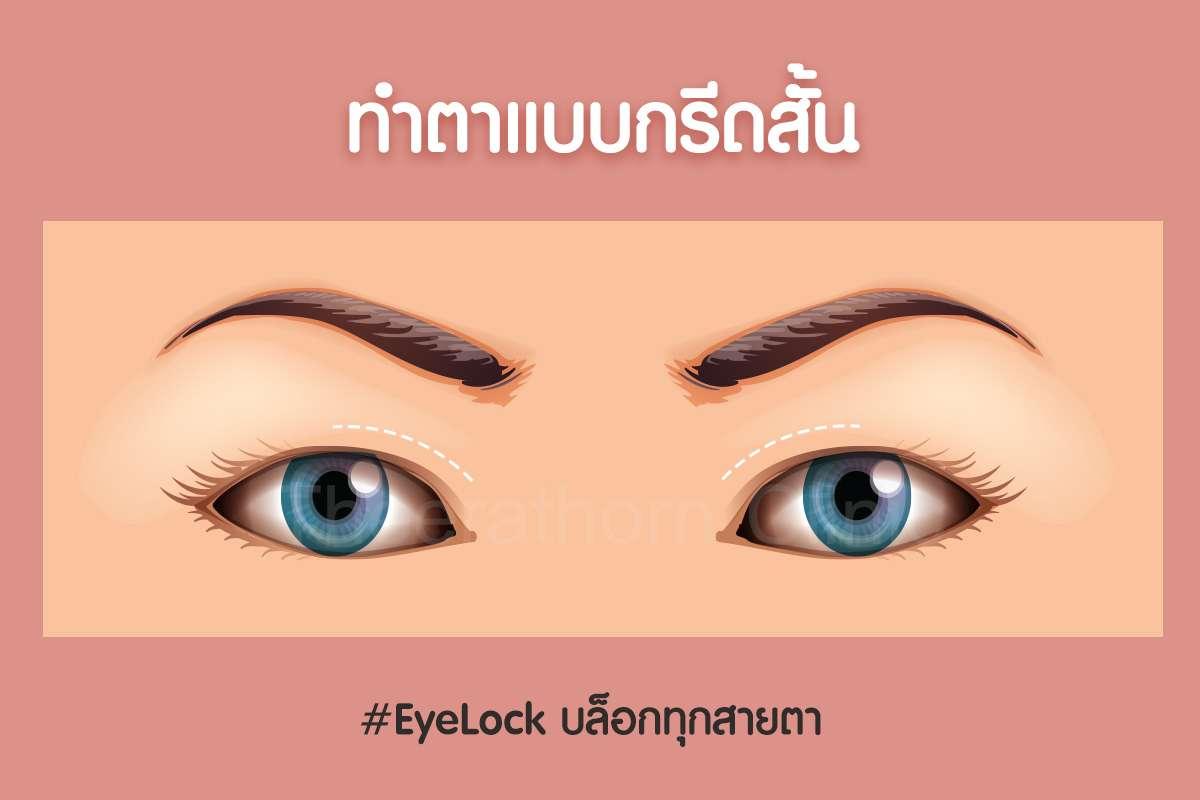 กรีดสั้น-ทำตา-แก้ตา-ทำตาที่ไหนดี-หมอกัน-ธีระธรฌ์คลินิก