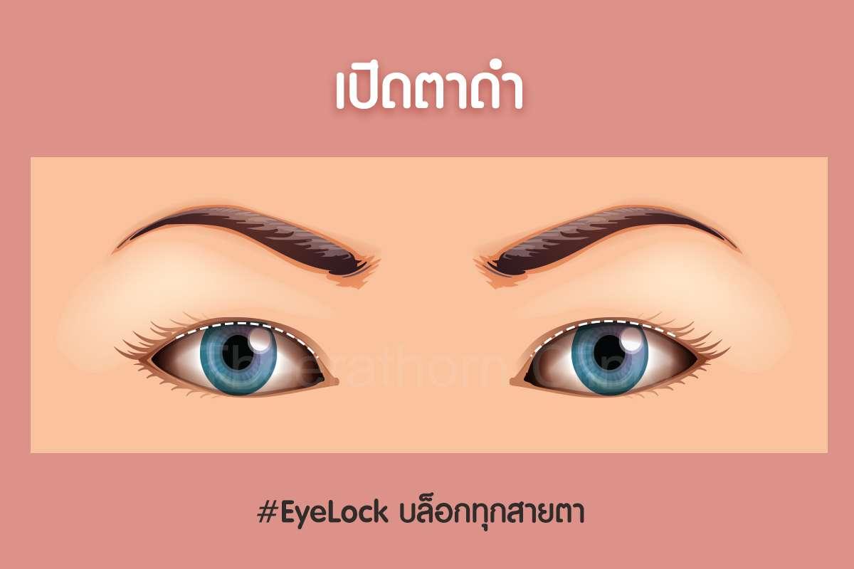 เปิดตาดำ--กรีดยาว-กรีดสั้น-ทำตา-แก้ตา-ทำตาที่ไหนดี-หมอกัน-ธีระธรฌ์คลินิก