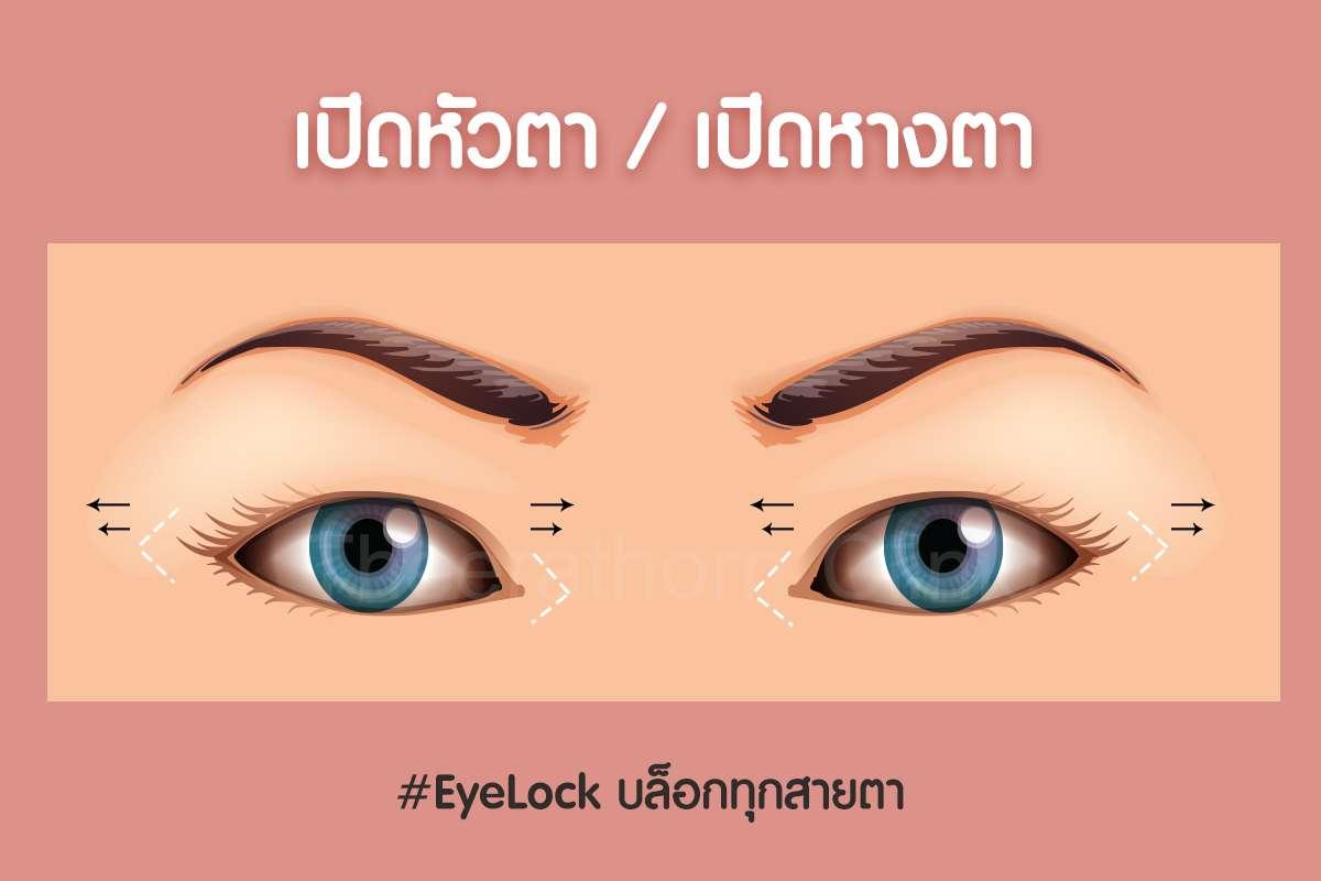 เปิดหัวตาหางตา-กรีดยาว-กรีดสั้น-ทำตา-แก้ตา-ทำตาที่ไหนดี-หมอกัน-ธีระธรฌ์คลินิก