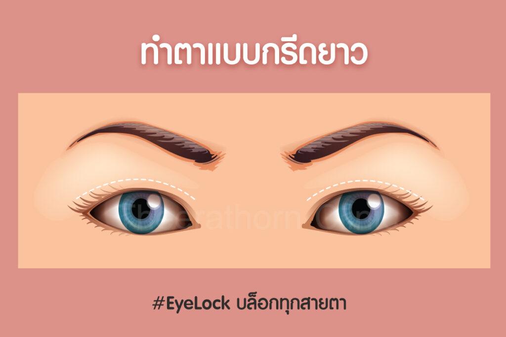 ทำตาสองชั้นมีกี่แบบ ทำตาสองสั้นแบบไหนดี