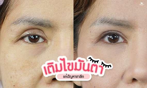 ทำตา-แก้ตา-กรีดตา-เติมไขมันตา-ทำตาสองสั้นแบบไหนดี-หมอกัน-ธีระธรฌ์คลินิก
