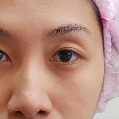 ตาขาดไขมันก่อน-ทำตา-แก้ตา-หมอกัน-ธีระธรฌ์คลินิก