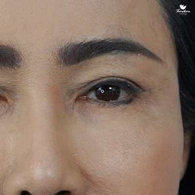 ตาลึก-ตาขาดไขมัน-ทำตา-แก้ตา-หมอกัน-ธีระธรฌ์คลินิก