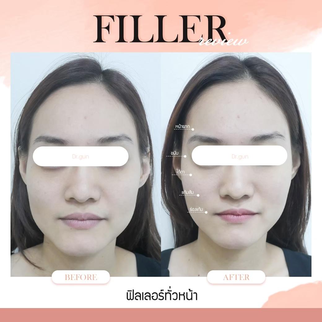 ฟิลเลอร์ คือ – ฉีดฟิลเลอร์หน้าผาก - ฉีดฟิลเลอร์ใต้ตา - ฉีดฟิลเลอร์ร่องแก้ม - ฉีดฟิลเลอร์ปาก - ฉีดฟิลเลอร์คาง - ฟิลเลอร์ฉีดจุดไหนได้บ้าง – ฟิลเลอร์แต่ละจุดควรฉีดกี่CC – ข้อควรรู้ก่อนและหลังฉีดฟิลเลอร์ - ฉีดฟิลเลอร์ที่ไหนดี? ต้องดูอะไรบ้าง – รวมรีวิวฟิลเลอร์ – ตอบคำถามยอดฮิต – คลินิกต้องได้รับมาตรฐาน - ฉีดฟิลเลอร์แท้ - หมอกัน - ธีระธรฌ์คลินิก