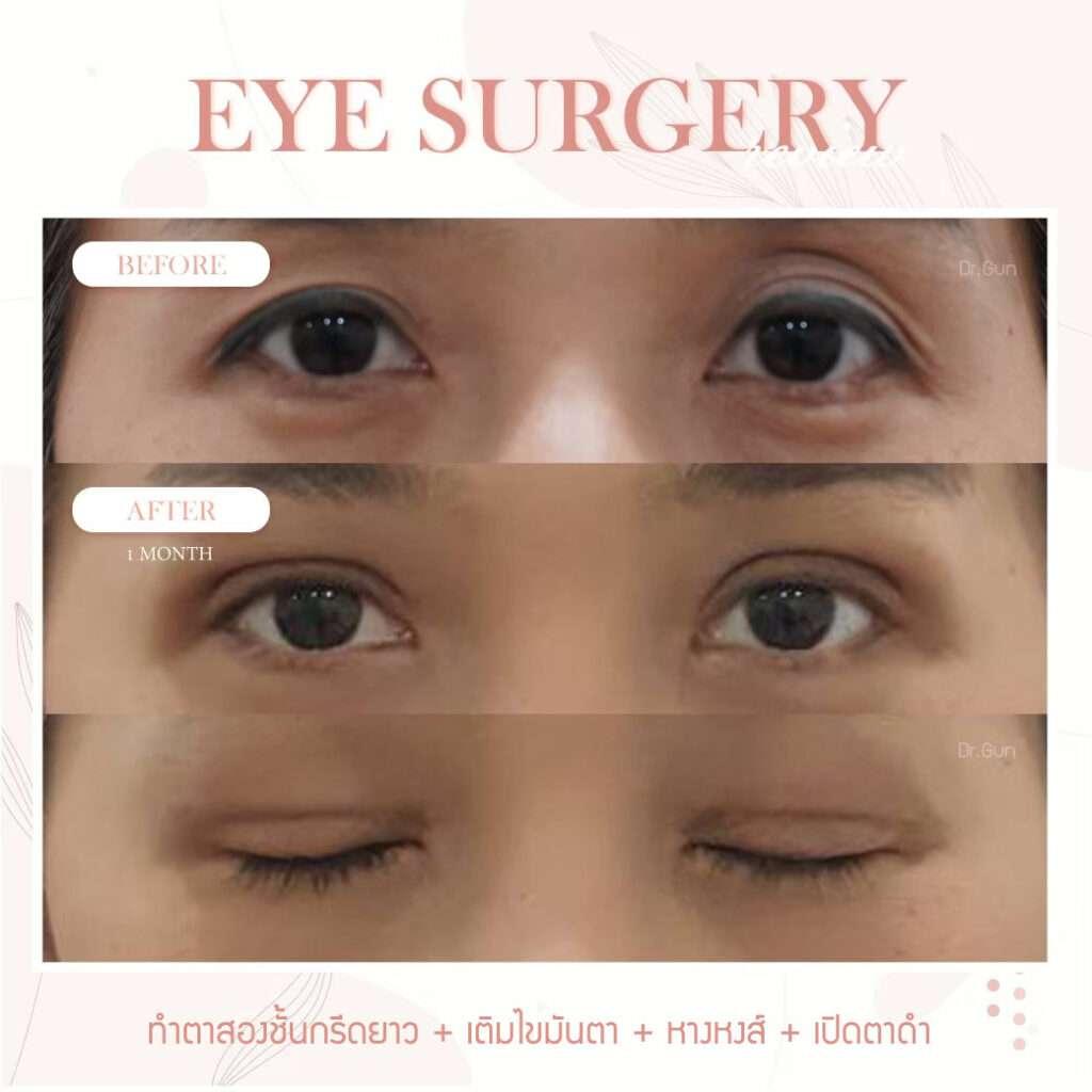 ผ่าตัดเปิดตาดำ