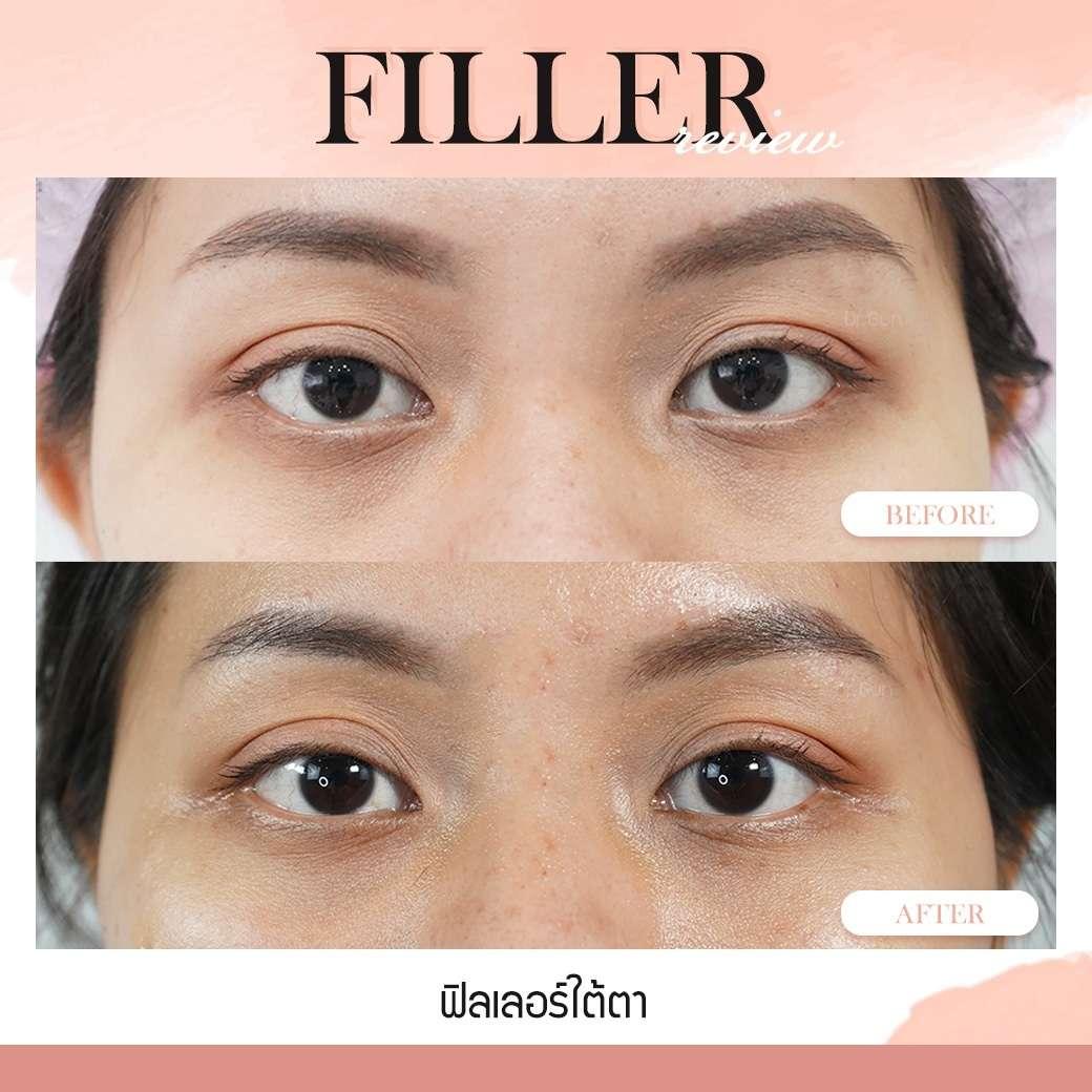 ฟิลเลอร์-Filler-ฟิลเลอร์คืออะไร-Fillerคืออะไร-ฟิลเลอร์ใต้ตา-ใต้ตาแบบไหนที่ควรฉีดฟิลเลอร์-ฟิลเลอร์ใต้ตาใช้กี่ซีซี—ฉีดฟิลเลอร์ใต้ตา-การปฏิบัติตัวก่อนการฉีดฟิลเลอร์-การดูแลตัวเองหลังจากฉีดฟิลเลอร์-ฉีดฟิลเลอร์ใต้ตาปรับโหงวเฮ้ง-ทำไมต้องฉีดฟิลเลอร์กับหมอกัน-เลือกใช้ฟิลเลอร์ยี่ห้อไหน ในการฉีดฟิลเลอร์ใต้ตา-รีวิวฟิลเลอร์ใต้ตา-ทำไมต้องฉีดฟิลเลอร์กับหมอกัน-หมอกัน-ธีระธรฌ์คลินิก