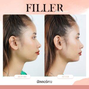 ฟิลเลอร์-Filler-ฟิลเลอร์คืออะไร-Fillerคืออะไร-ฟิลเลอร์คาง-คางแบบไหนที่ควรฉีดฟิลเลอร์-ฟิลเลอร์คางใช้กี่ซีซี—ฉีดฟิลเลอร์คาง-การปฏิบัติตัวก่อนการฉีดฟิลเลอร์-การดูแลตัวเองหลังจากฉีดฟิลเลอร์-ฉีดฟิลเลอร์คางปรับโหงวเฮ้ง-ทำไมต้องฉีดฟิลเลอร์กับหมอกัน-เลือกใช้ฟิลเลอร์ยี่ห้อไหน ในการฉีดฟิลเลอร์คาง-รีวิวฟิลเลอร์คาง-ทำไมต้องฉีดฟิลเลอร์กับหมอกัน-หมอกัน-ธีระธรฌ์คลินิก