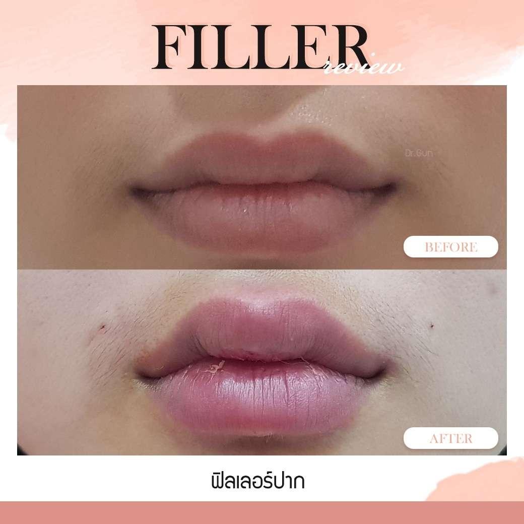 ฟิลเลอร์-Filler-ฟิลเลอร์คืออะไร-Fillerคืออะไร-ฟิลเลอร์ ช่วยอะไรได้บ้าง-ฟิลเลอร์สามารถฉีดตำแหน่งไหนได้บ้าง-ฉีดฟิลเลอร์อันตรายไหม-วิธีตรวจสอบฟิลเลอร์-ฟิลเลอร์แท้-ฟิลเลอร์ปลอม-ทำไมต้องฉีดฟิลเลอร์กับหมอกัน-การปฏิบัติตัวก่อนการฉีดฟิลเลอร์-การดูแลตัวเองหลังจากฉีดฟิลเลอร์-หมอกัน-ธีระธรฌ์คลินิก