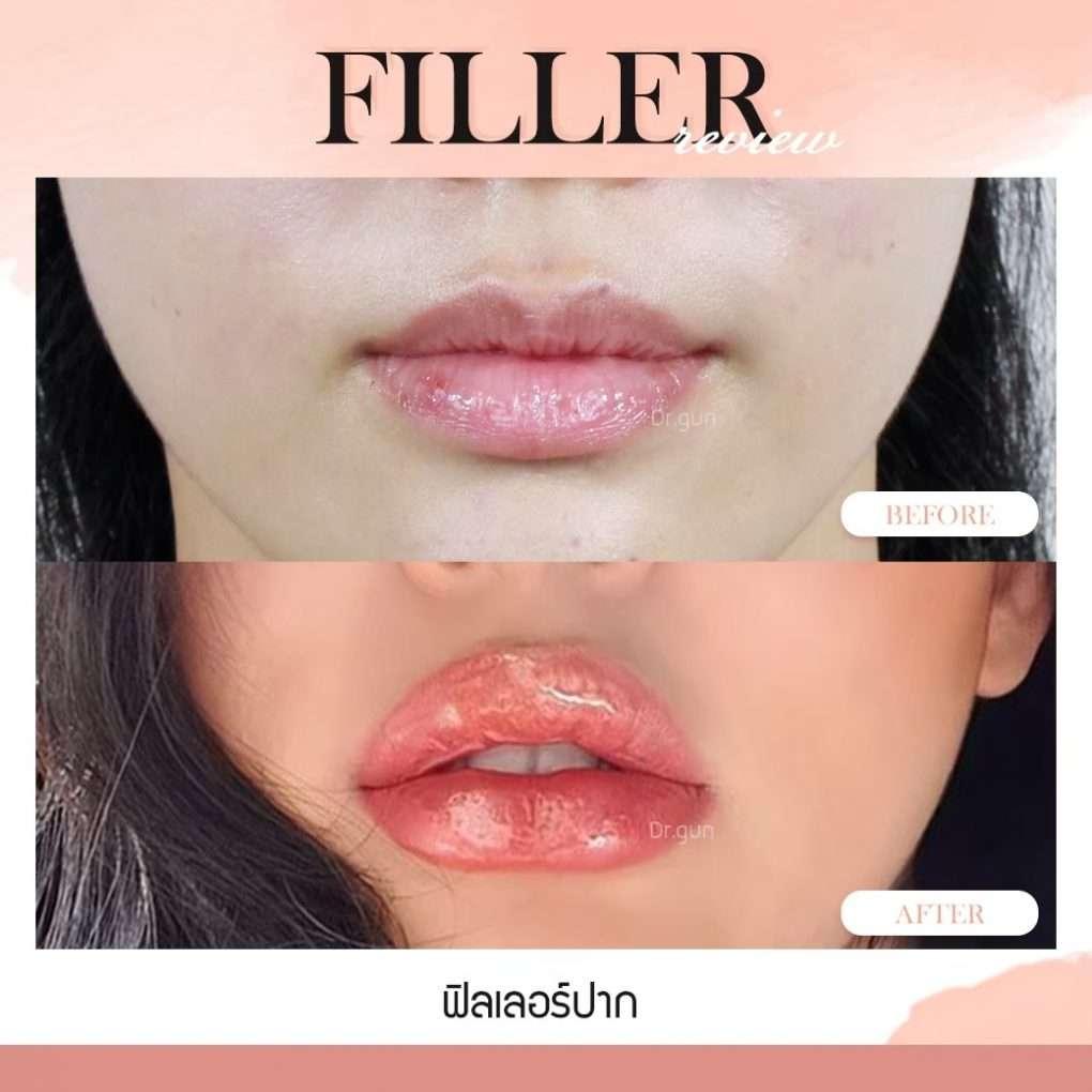ฟิลเลอร์-Filler-ฟิลเลอร์คืออะไร-Fillerคืออะไร-ฟิลเลอร์ใช้กี่ซีซี-จุดไหนฉีดฟิลเลอร์ได้บ้าง-การปฏิบัติตัวก่อนการฉีดฟิลเลอร์-การดูแลตัวเองหลังจากฉีดฟิลเลอร์-ฉีดฟิลเลอร์ปรับโหงวเฮ้ง-ฉีดฟิลเลอร์เติมเต็ม-ฉีดฟิลเลอร์ปรับรูปหน้า-ทำไมต้องฉีดฟิลเลอร์กับหมอกัน-เลือกใช้ฟิลเลอร์ยี่ห้อไหนดี-ฟิลเลอร์ยี่ห้อไหนดี-รีวิวฟิลเลอร์-ทำไมต้องฉีดฟิลเลอร์กับหมอกัน-หมอกัน-ธีระธรฌ์คลินิก