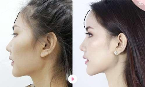 วิธีดูแลตัวเองหลังเสริมหน้าผาก-เสริมหน้าผาก-ฉีดฟิลเลอร์-ฉีดไขมันหน้า-หมอกัน-ธีระธรฌ์คลินิก