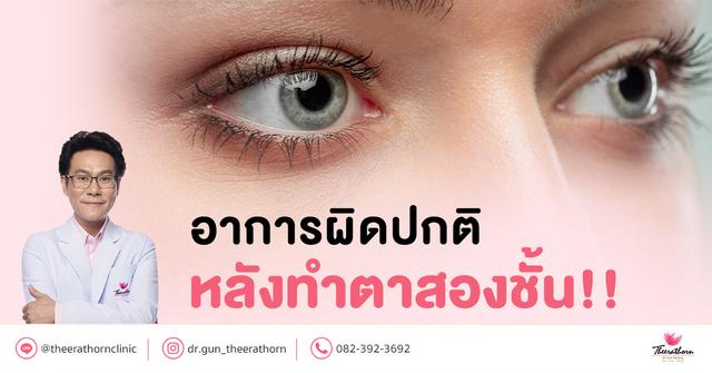 อาการผิดปกติ หลังทำตาสองชั้น อาการแบบไหนต้องรีบมาหาหมอ